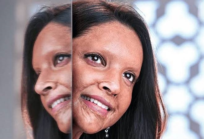 Chhapaak set to make its digital premiere on Hotstar VIP